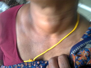 Thyroid adenoma Human disease