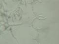 Tilletiopsis spores 160X (1).png