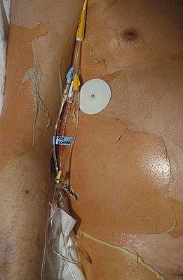 Эпидермальный некролиз синдром лайелла 13