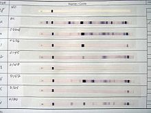 220px Western Blot results for HIV test young adult patton oswalt charlize theron.jpg