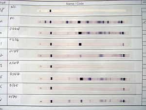 Diagnosis of HIV/AIDS - Western blot test results. The first two strips are a negative and a positive control, respectively. The others are actual tests.
