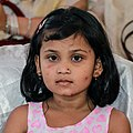 A child with chickenpox (01).jpg