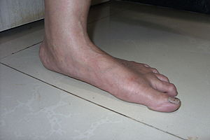 Flatfoot in a 55 years old female with ankle a...