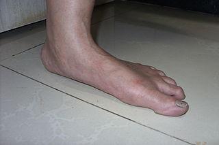 Diseases of the foot