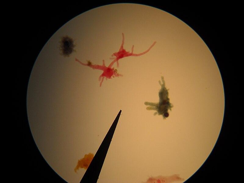Amoeba.microscope