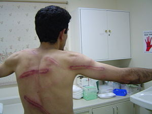 Bahrain Thirteen - Beating marks on the back and arm of Abdulhadi al-Khawaja allegedly as a result of police attack on a protest in 2005
