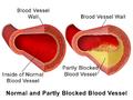 Blausen 0052 Artery NormalvPartially-BlockedVessel.png