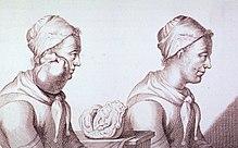 Incisione che descrive una donna olandese con un tumore del collo, prima e dopo la rimozione. 1689.