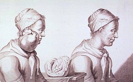 Engraving with two views of a Dutch woman who had a tumor removed from her neck in 1689 Clara Jacobi-Tumor.jpg