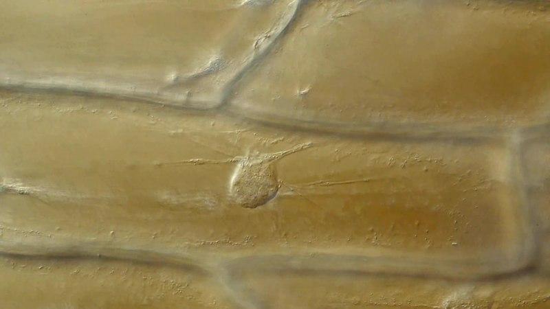 File:Cytoplasmic streaming.webm