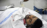 Fadhel Аль-Matrook тела при Salmaniya morgue.jpg