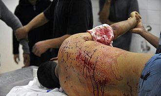 Death of Fadhel Al-Matrook - Police fired birdshot from close range at Al-Matrook's back