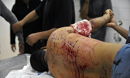 Police fired birdshot from close range at Al-Matrook's back. Fadhel Al-Matrook body at Salmaniya morgue 3.jpg