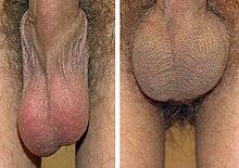 per allargare pene