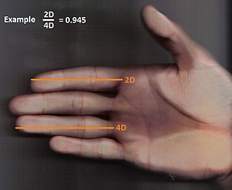 Digit ratio - Hand with index finger being shorter than the ring finger, resulting in a small 2D:4D ratio, pointing to a high exposure to testosterone in the uterus.