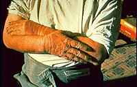 Hands damaged by kerosene.jpg