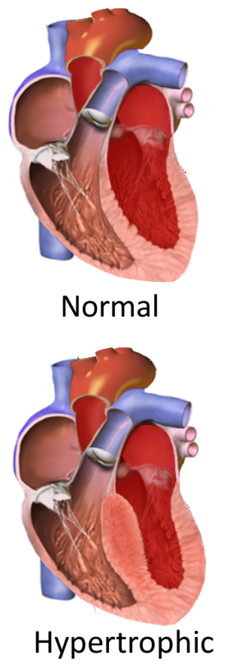 Hypertrophic obstructive cardiomyopathy.png