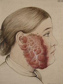 Lupus vulgaris sive hypertrophicus affecting the cheek Wellcome L0062253.jpg