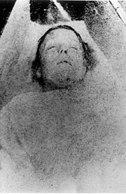 Mortuary photograph of Nichols: a middle-aged woman with short, mousey hair and a prominent, narrow nose