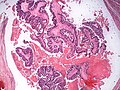 Metastatic colonic adenocarcinoma, intrabronchial (7425443926).jpg