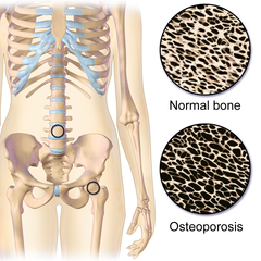 Evidence-based Therapeutic Interventions for Individuals with Osteoporosis