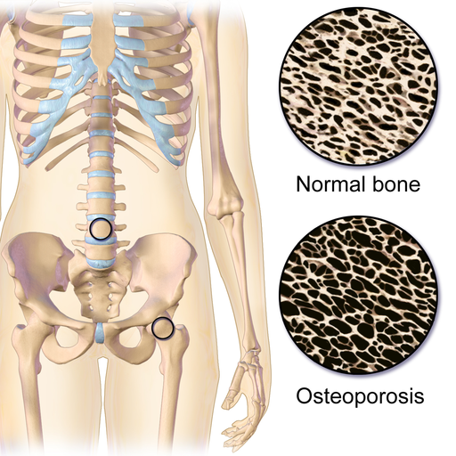 Osteoporosis Locations