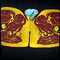 Pelvic MRI T1FSE T2frFSE T2FSfrFSE 30.jpg