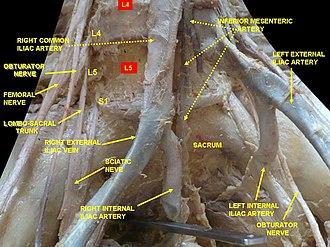 External iliac artery - Image: Slide 2ewew