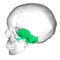Temporal bone lateral3.png