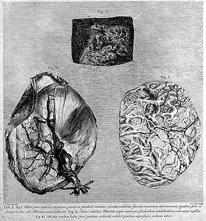 The anatomy of the human gravid uterus; uterus. Wellcome L0006729.jpg