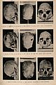 Three trephinated skulls of people who may have suffered fro Wellcome V0015971.jpg
