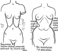 Toleration of the corset1028fig6-7.png