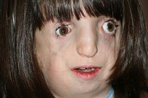 Treacher Collins syndrome (MedMedicine).jpg