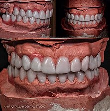 Cosmetic dentistry - Wikipedia
