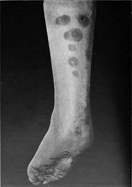 Description de l'image An introduction to dermatology (1905) erythema induratum 2.jpg.