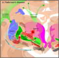 Basal ganglia in Parkinson's disease.png