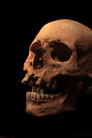 Charon's obol - Roman skull with an obol (an Antoninus Pius dupondius) in the mouth.