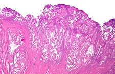 Endometrioid endometrial adenocarcinoma low mag.jpg