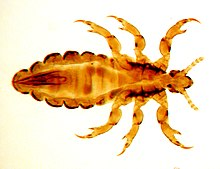 Fig. 1. Male of head louse.jpg