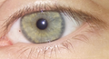 Foreign body on cornea.png