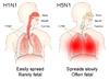 H1N1 versus H5N1 pathology.png