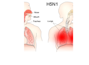 Influenza A virus subtype H5N1 - Image: H1N1 versus H5N1 pathology