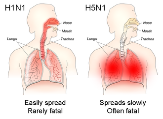 Influenza A virus subtype H5N1 - The different sites of infection (shown in red) of seasonal H1N1 versus avian H5N1 influences their lethality and ability to spread.