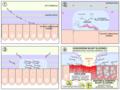 H pylori ulcer diagram pl.png