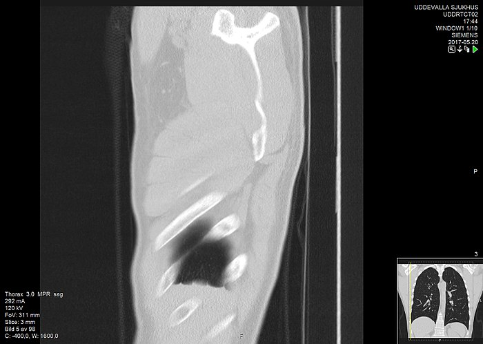 High-resolution computed tomograph of a normal thorax, sagittal plane (5).jpg