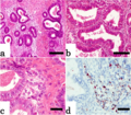 Histopathology of well-differentiated endometrioid adenocarcinoma - HE and oil red-O.png