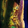 Lumbosacral MRI case 05 02.jpg