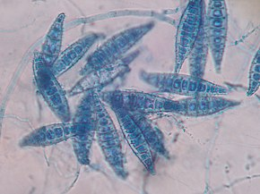 Description de l'image Macroconidia Microsporum canis.JPG.