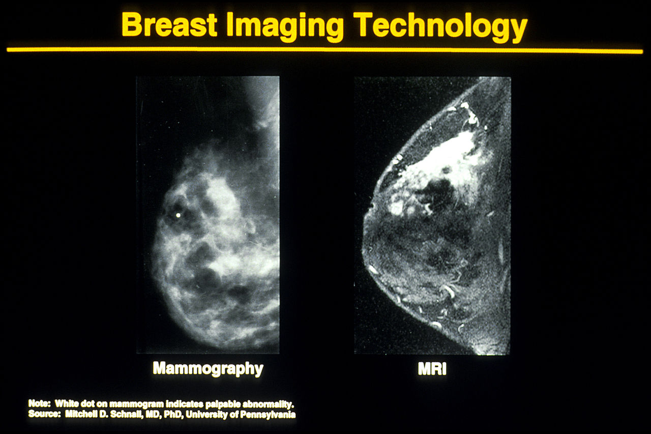 Image Result For Breast Cancer Wikipedia