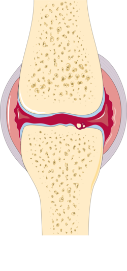 Osteoarthritis and rheumatoid arthritis - Rheumatoid arthritis -- Smart-Servier.png